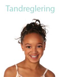 Tandreglering